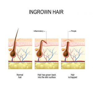 ingrownhair explained