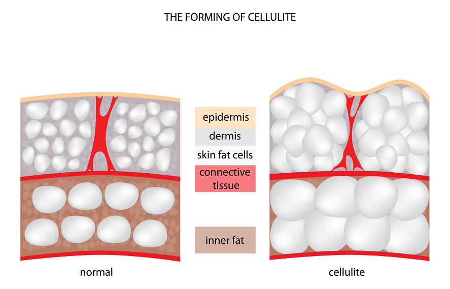 Cellulite 1
