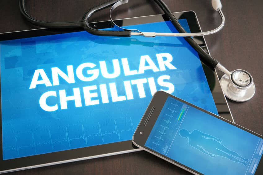 angular cheilitis (cutaneous disease) diagnosis medical concept on tablet screen with stethoscope.