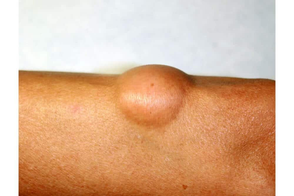 Facts About Lipoma