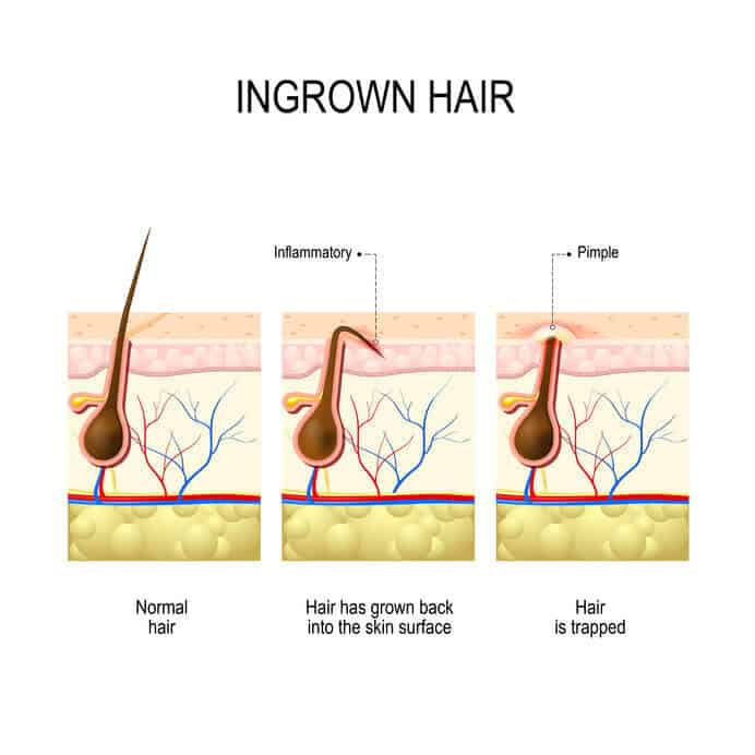 5 Tips Ingrown Hairs On Your Private Areas Healthfaire