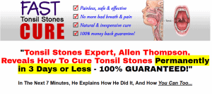 tonsil stones remedy