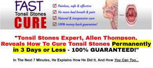 tonsil stones remedy
